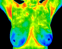 Normal Breast Thermography pic