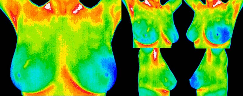 What is Breast Thermography Los Angeles California