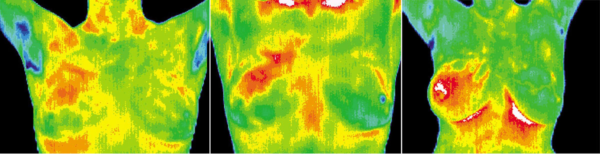 IBC 3 months 12 months breast thermography results