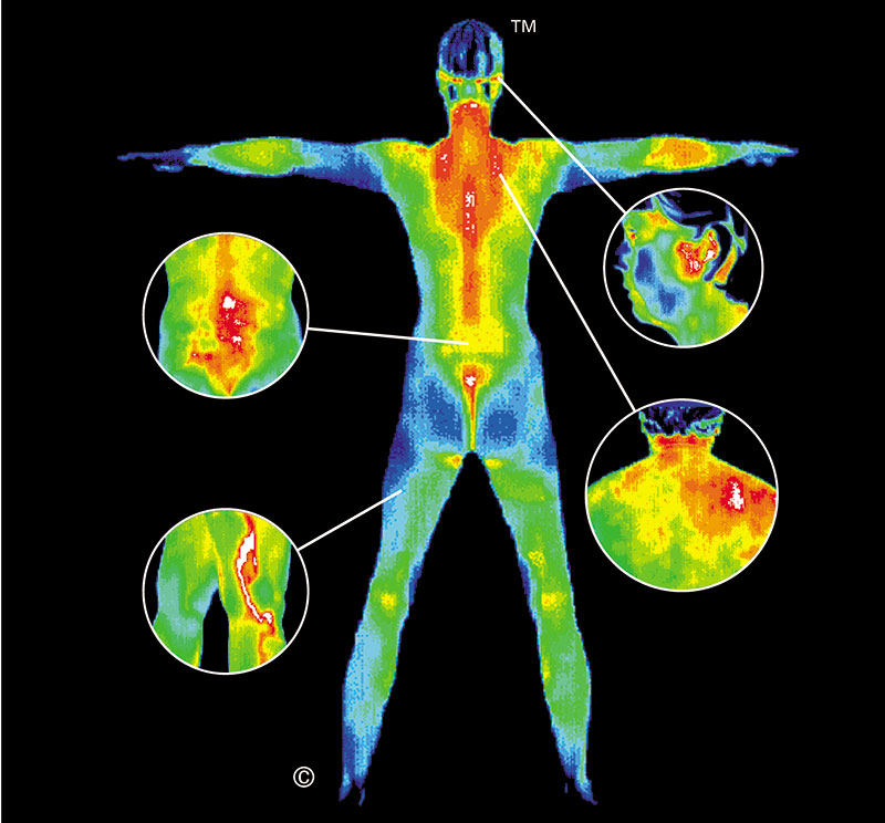 Pain Full Body Thermography Scan