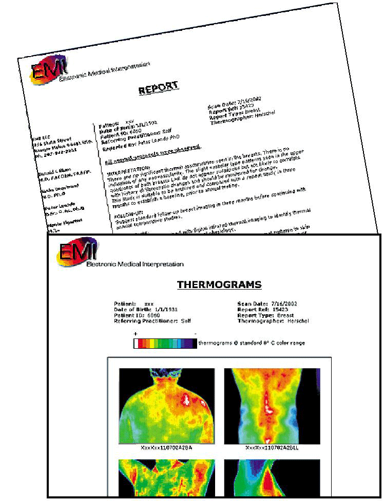 Thermograpy Report